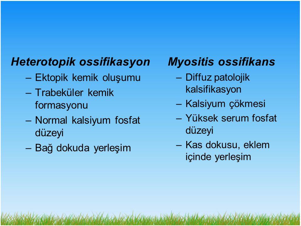 Heterotopik ossifikasyon Myositis ossifikans