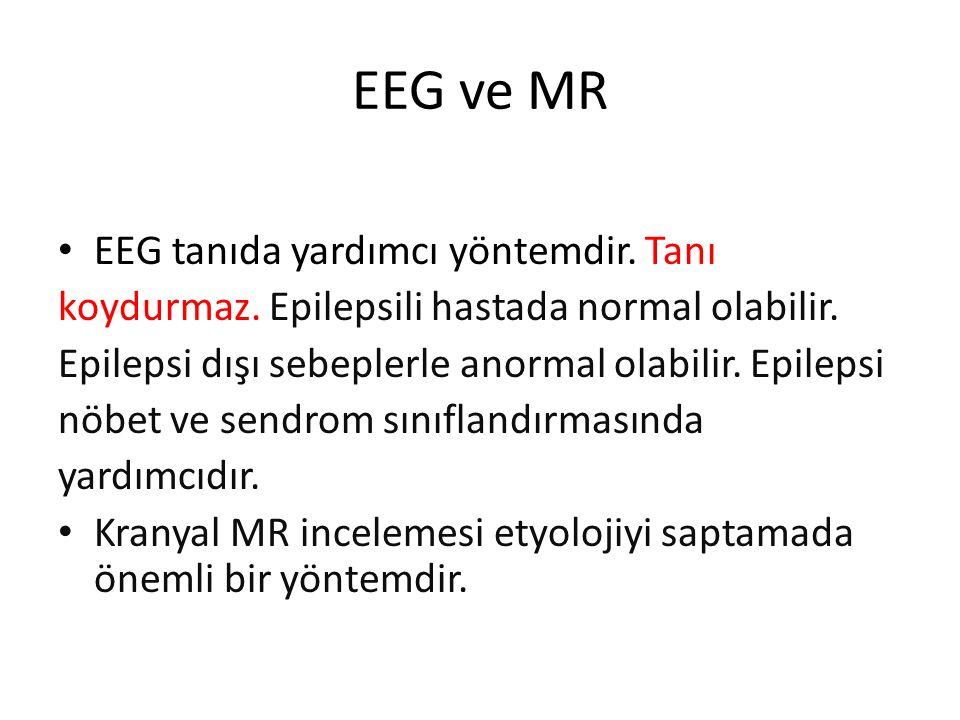 EEG ve MR EEG tanıda yardımcı yöntemdir. Tanı