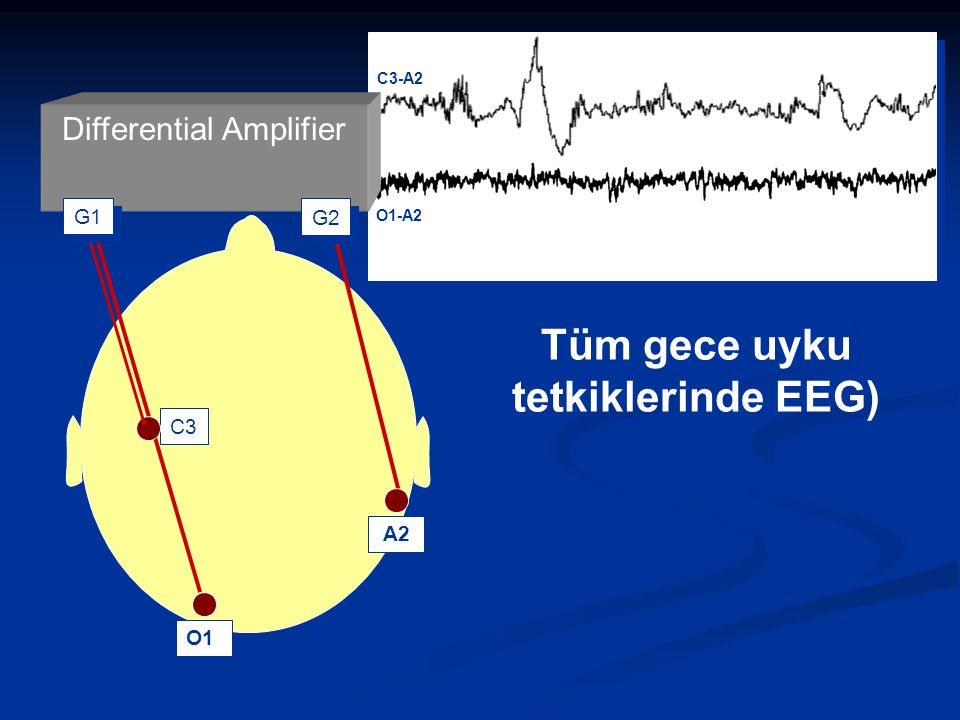 Tüm gece uyku tetkiklerinde EEG)