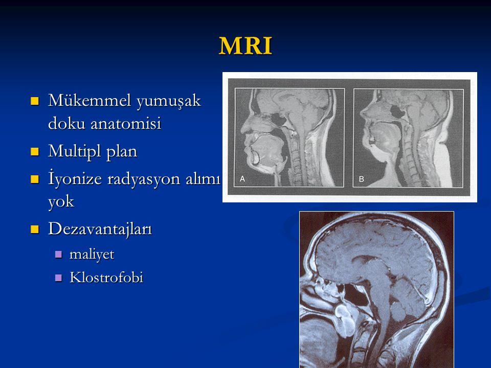 MRI Mükemmel yumuşak doku anatomisi Multipl plan