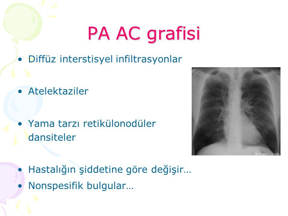 PA AC grafisi Diffüz interstisyel infiltrasyonlar Atelektaziler