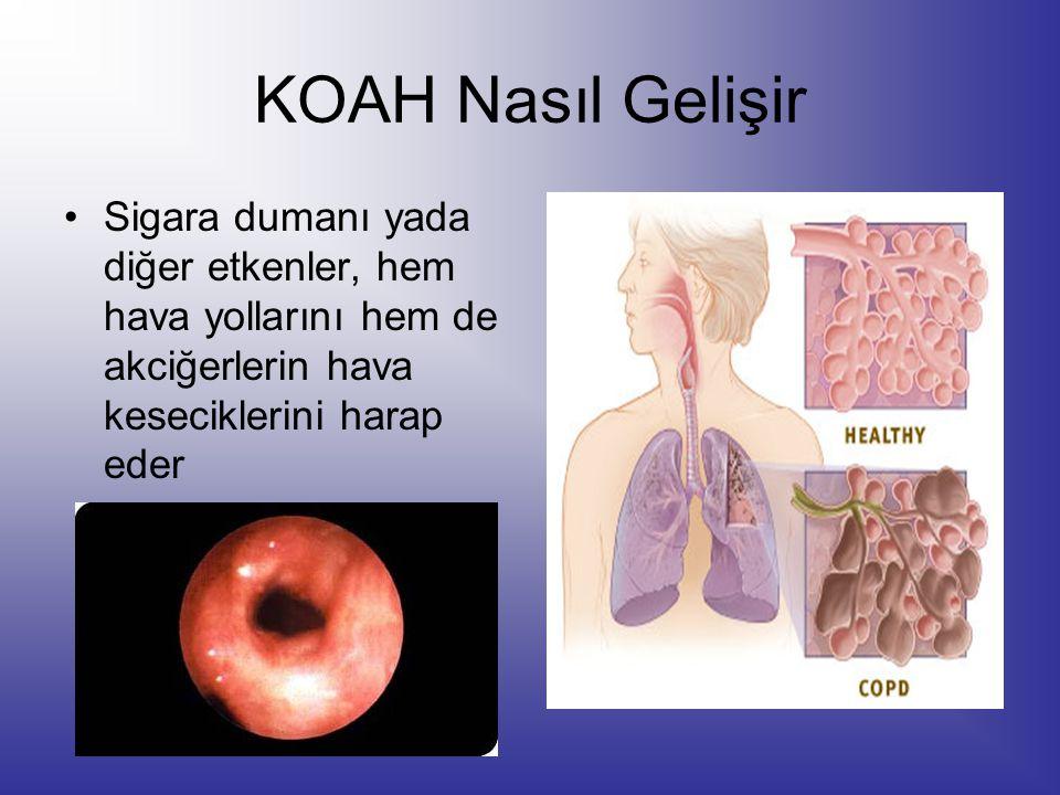KOAH Nasıl Gelişir Sigara dumanı yada diğer etkenler, hem hava yollarını hem de akciğerlerin hava keseciklerini harap eder.