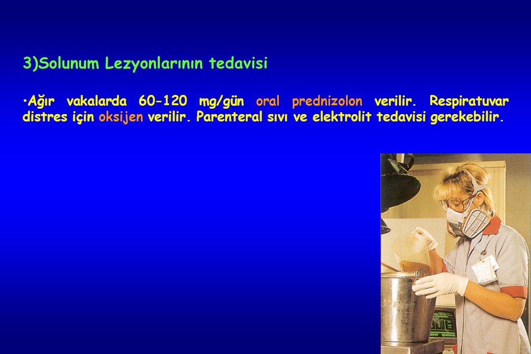 3)Solunum Lezyonlarının tedavisi