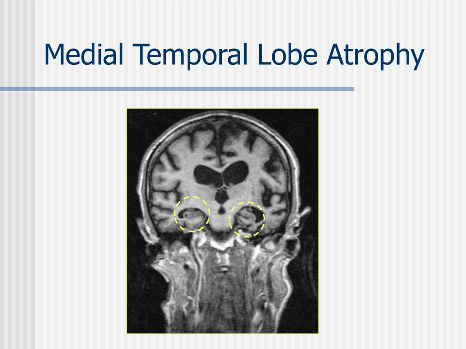 Medial Temporal Lobe Atrophy