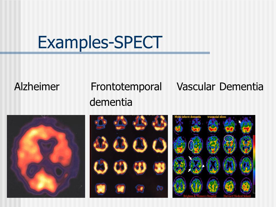 Examples-SPECT Alzheimer Frontotemporal Vascular Dementia dementia