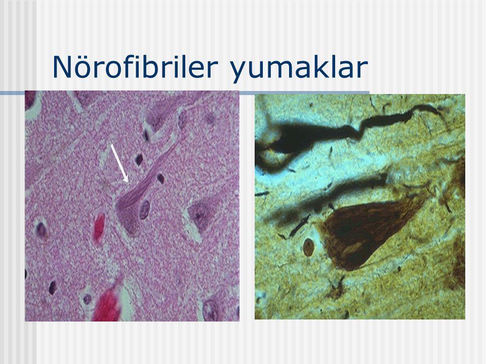 Nörofibriler yumaklar