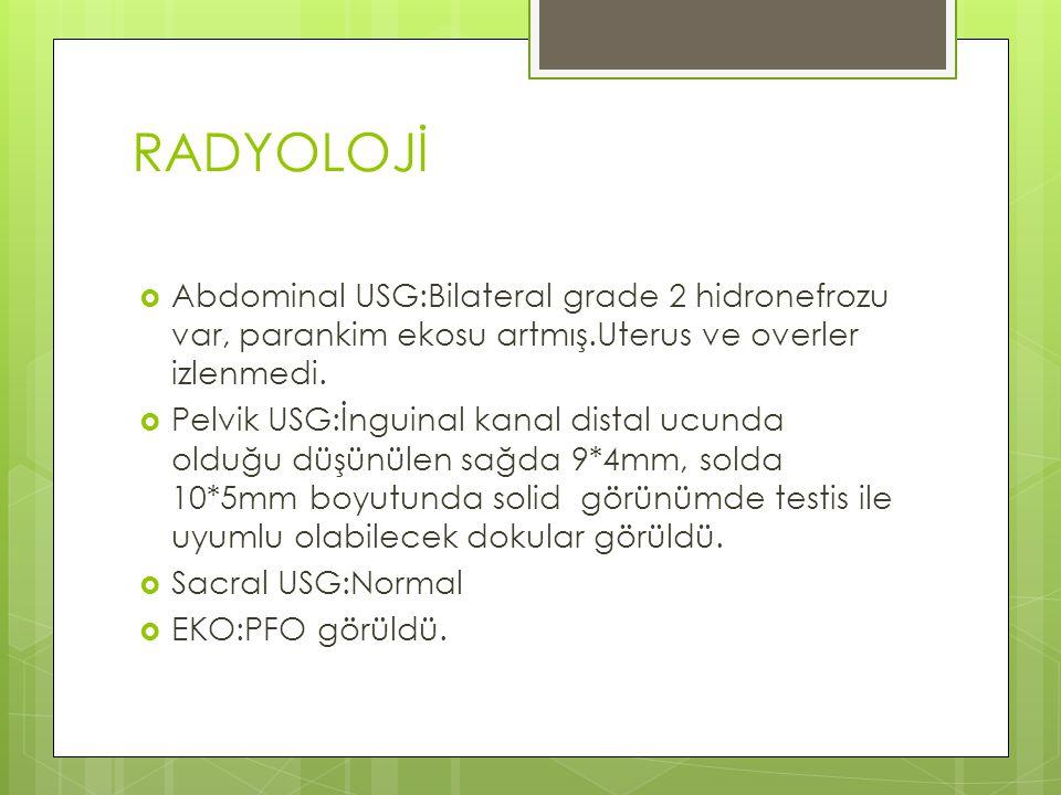 RADYOLOJİ Abdominal USG:Bilateral grade 2 hidronefrozu var, parankim ekosu artmış.Uterus ve overler izlenmedi.