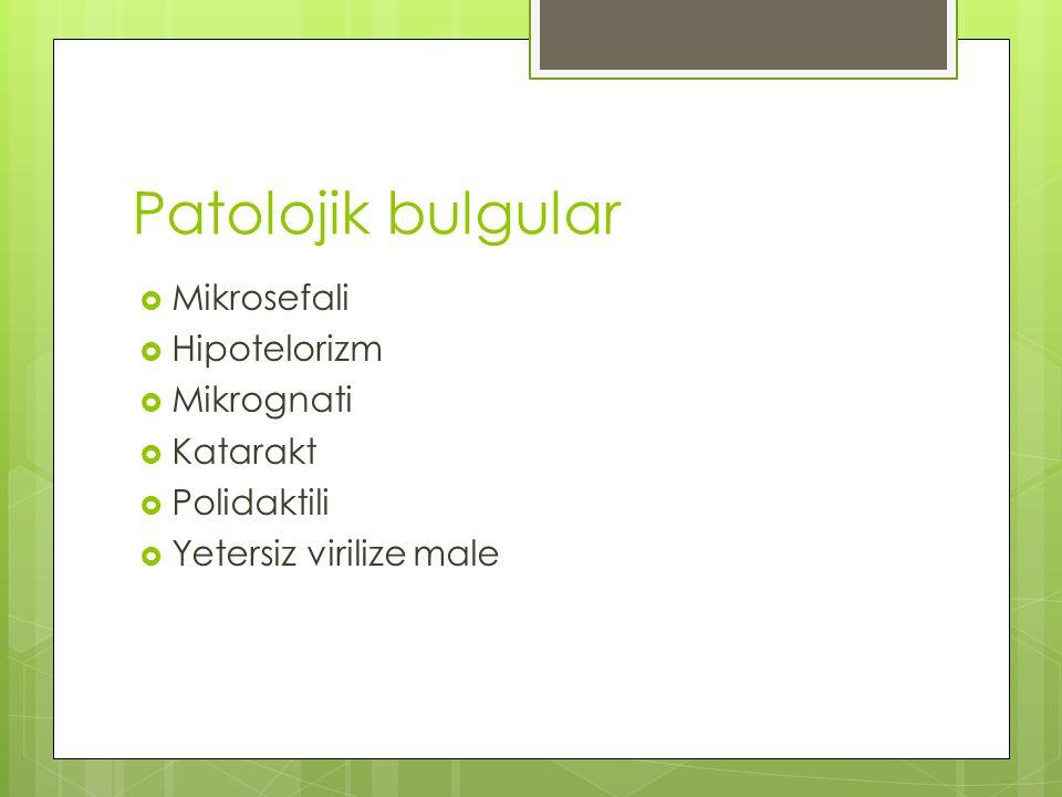 Patolojik bulgular Mikrosefali Hipotelorizm Mikrognati Katarakt