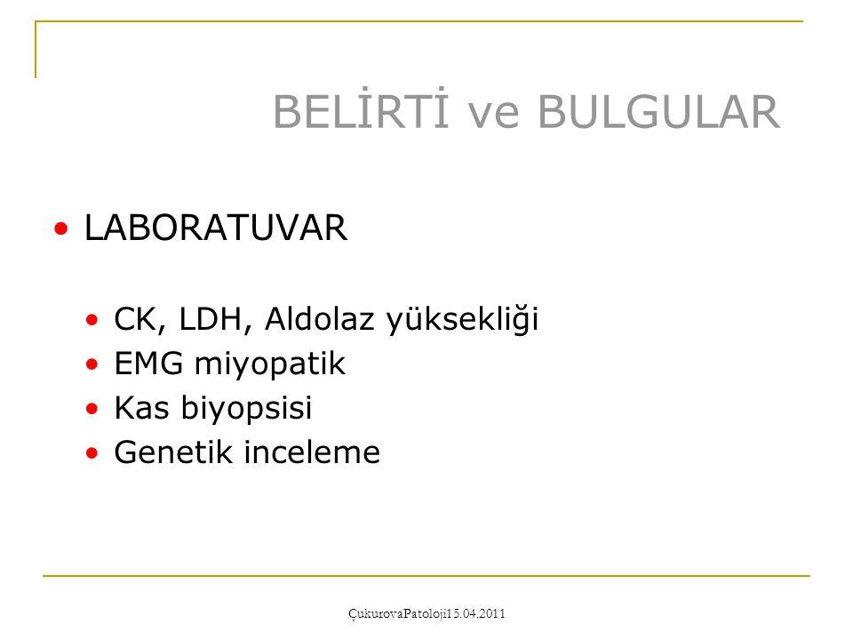 BELİRTİ ve BULGULAR LABORATUVAR CK, LDH, Aldolaz yüksekliği