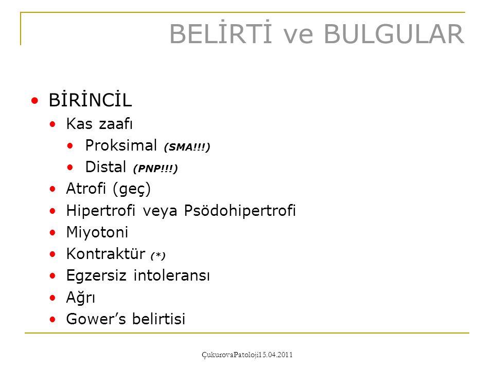 BELİRTİ ve BULGULAR BİRİNCİL Kas zaafı Proksimal (SMA!!!)