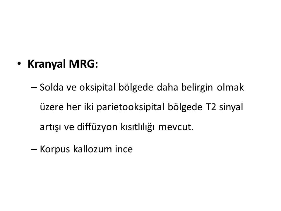 Kranyal MRG: Solda ve oksipital bölgede daha belirgin olmak üzere her iki parietooksipital bölgede T2 sinyal artışı ve diffüzyon kısıtlılığı mevcut.