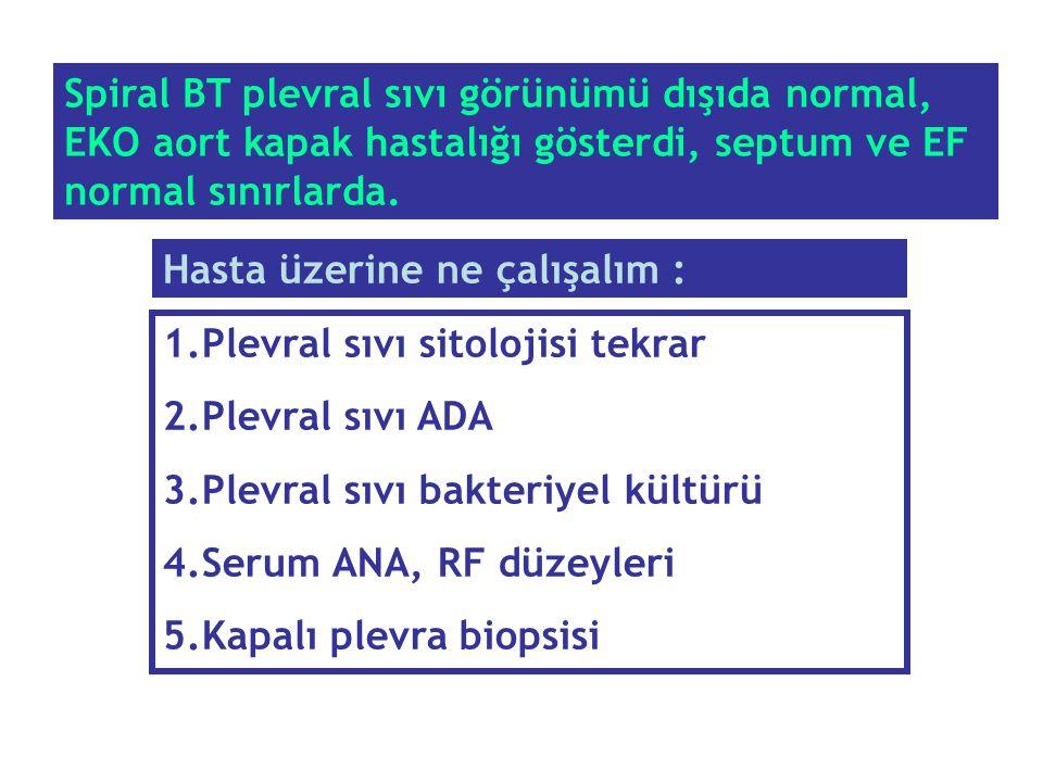 Spiral BT plevral sıvı görünümü dışıda normal, EKO aort kapak hastalığı gösterdi, septum ve EF normal sınırlarda.