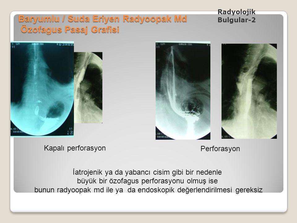 Baryumlu / Suda Eriyen Radyoopak Md Özofagus Pasaj Grafisi