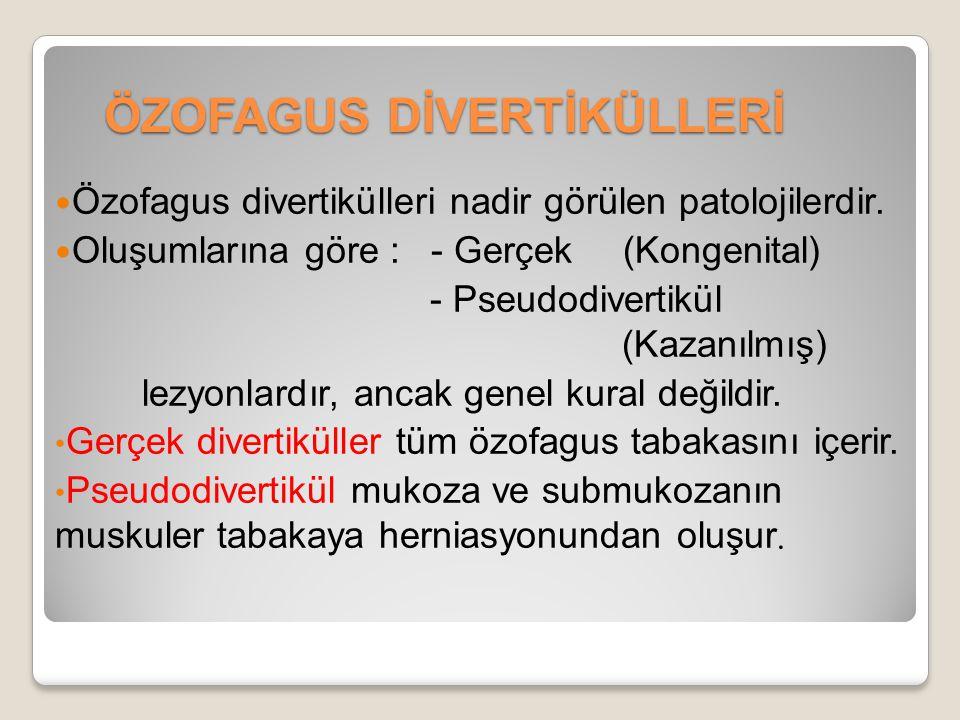 ÖZOFAGUS DİVERTİKÜLLERİ