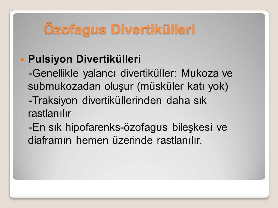 Özofagus Divertikülleri