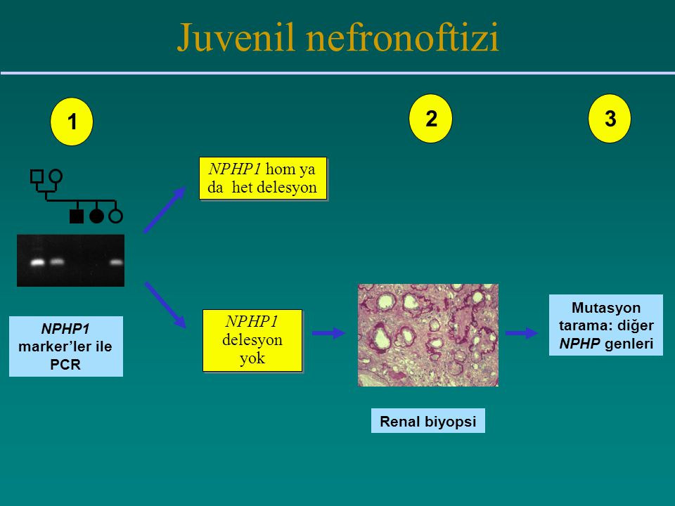 Mutasyon tarama: diğer NPHP genleri