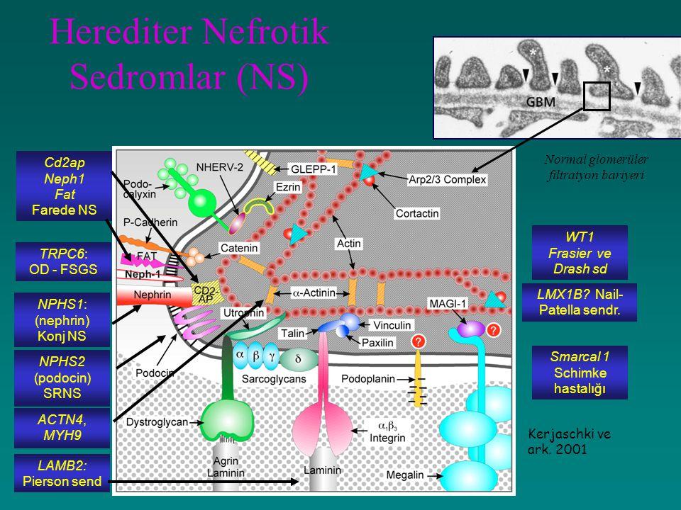 Herediter Nefrotik Sedromlar (NS)
