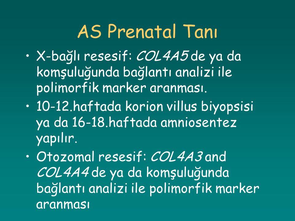 AS Prenatal Tanı X-bağlı resesif: COL4A5 de ya da komşuluğunda bağlantı analizi ile polimorfik marker aranması.