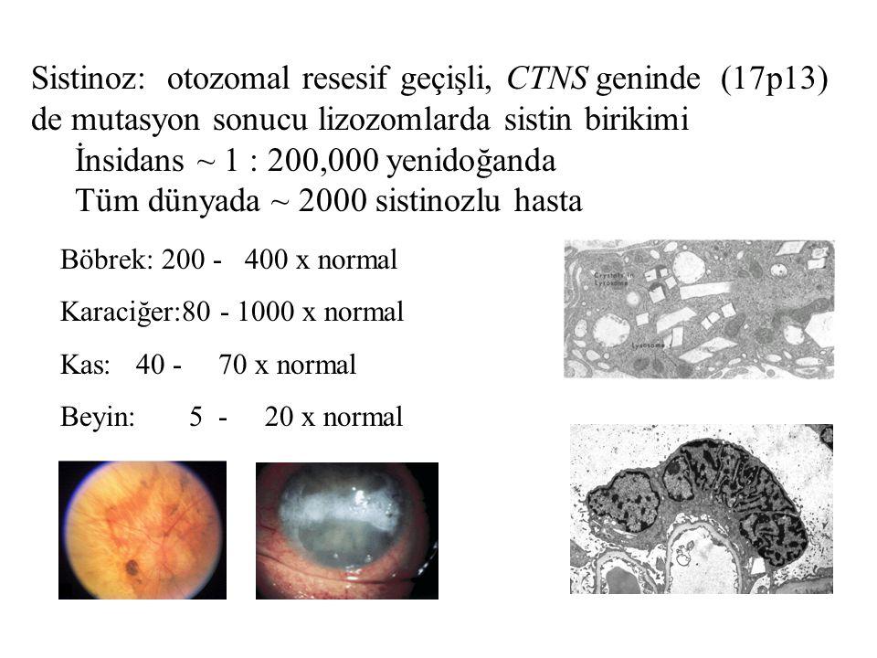 İnsidans ~ 1 : 200,000 yenidoğanda Tüm dünyada ~ 2000 sistinozlu hasta