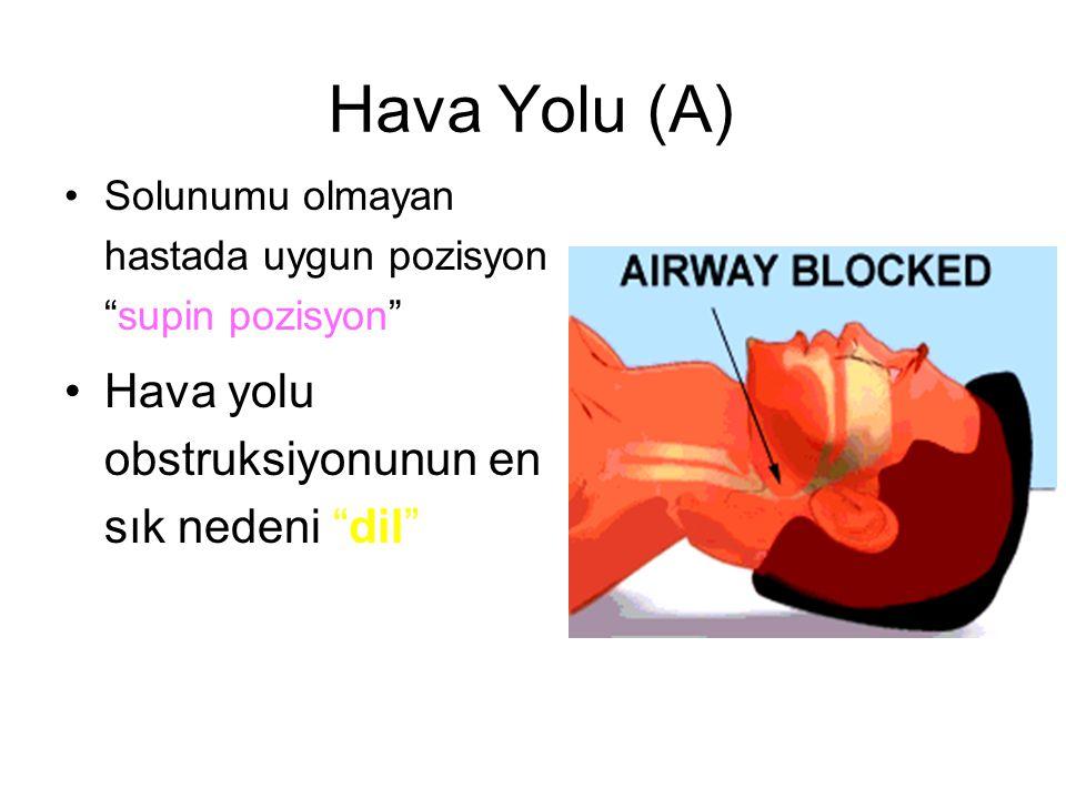 Hava Yolu (A) Hava yolu obstruksiyonunun en sık nedeni dil