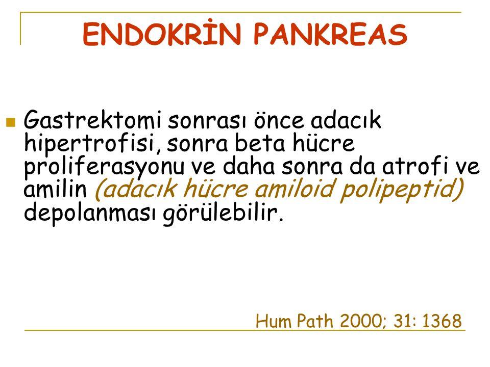 ENDOKRİN PANKREAS