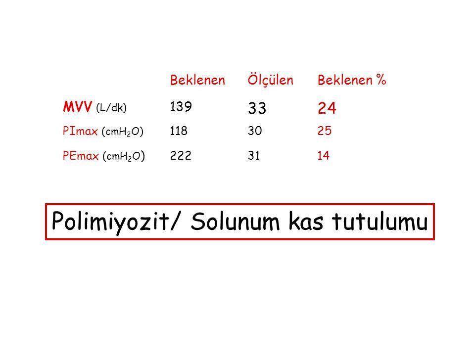 Polimiyozit/ Solunum kas tutulumu
