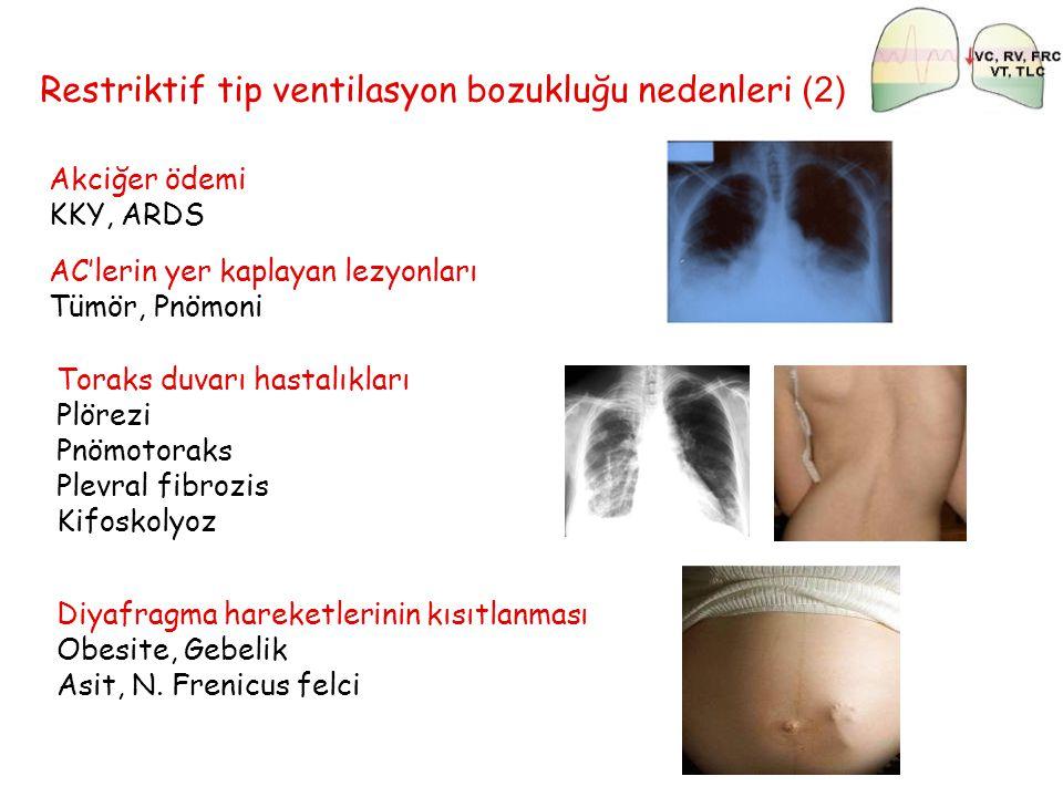 Restriktif tip ventilasyon bozukluğu nedenleri (2)