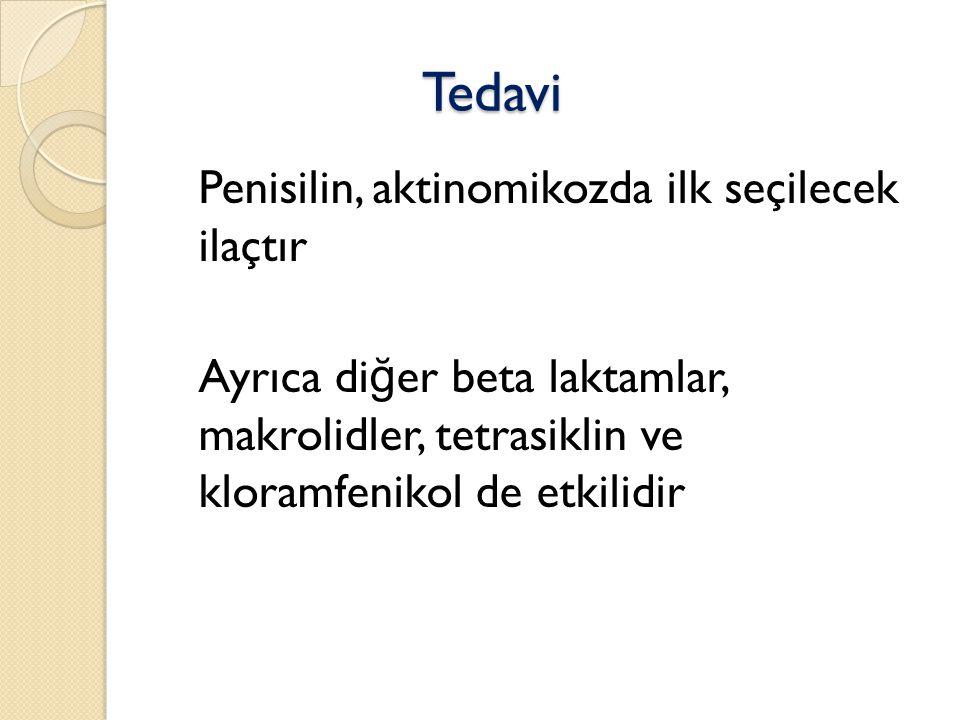 Tedavi Penisilin, aktinomikozda ilk seçilecek ilaçtır