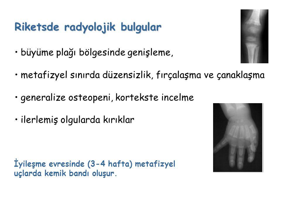 Riketsde radyolojik bulgular