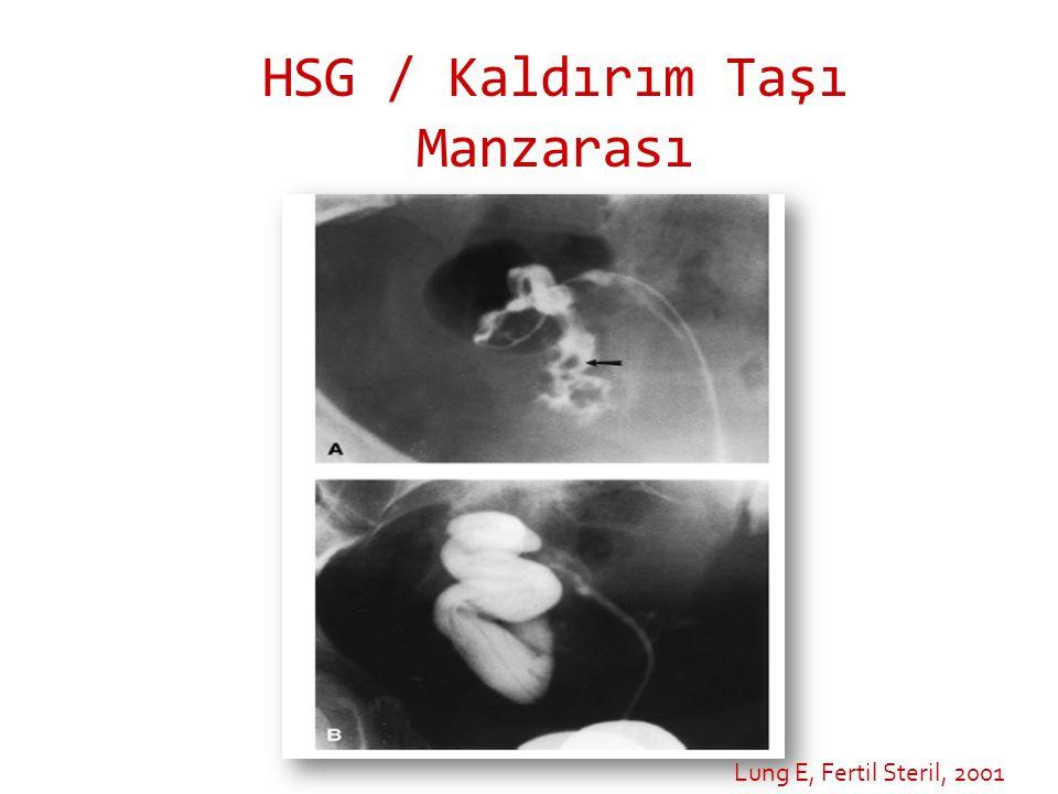 HSG / Kaldırım Taşı Manzarası