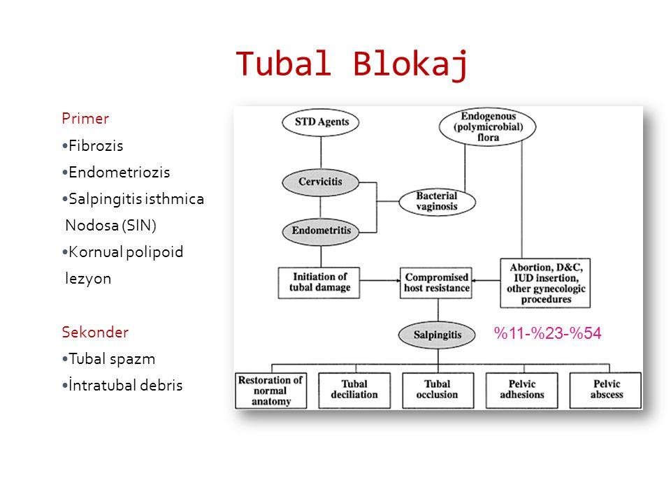 Tubal Blokaj Primer Fibrozis Endometriozis Salpingitis isthmica