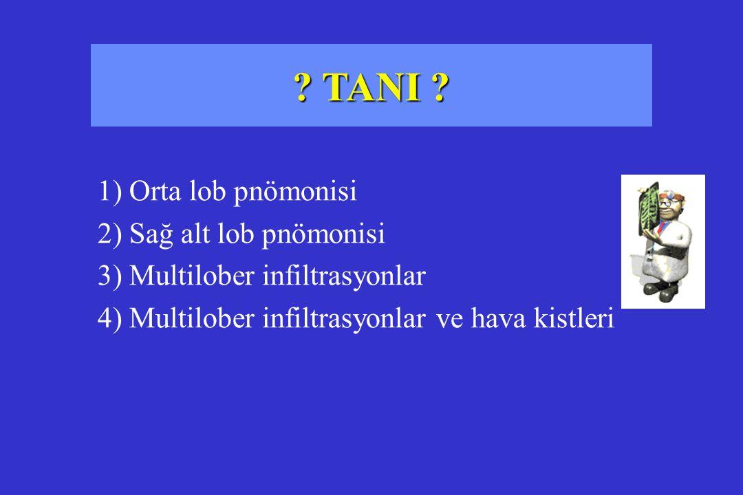 TANI 1) Orta lob pnömonisi 2) Sağ alt lob pnömonisi