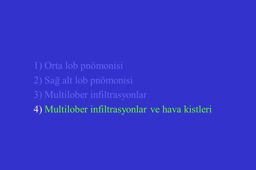 3) Multilober infiltrasyonlar
