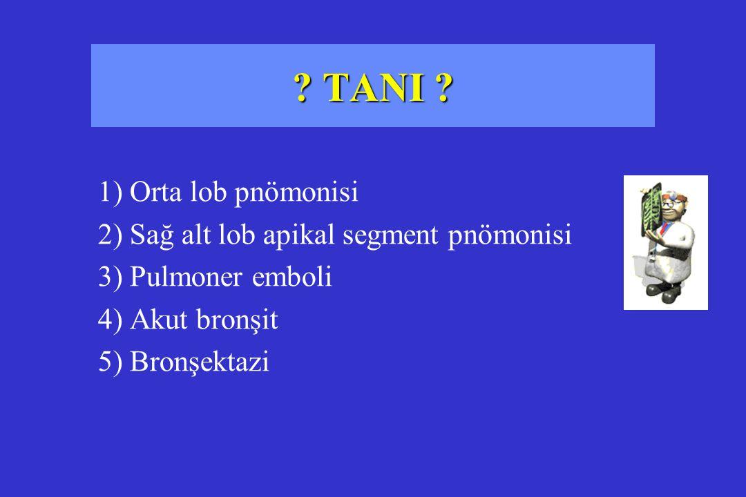 TANI 1) Orta lob pnömonisi 2) Sağ alt lob apikal segment pnömonisi