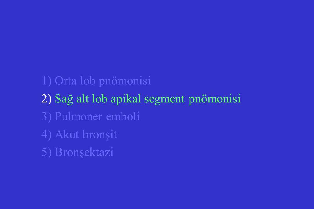 1) Orta lob pnömonisi 2) Sağ alt lob apikal segment pnömonisi. 3) Pulmoner emboli. 4) Akut bronşit.