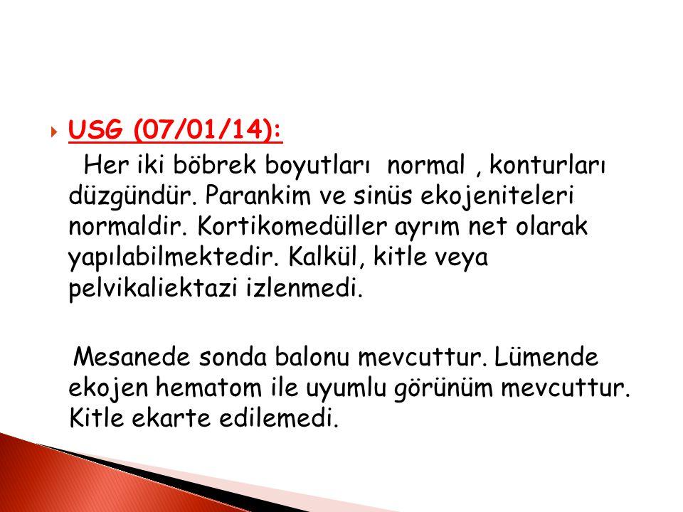 USG (07/01/14):