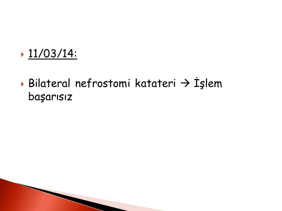 11/03/14: Bilateral nefrostomi katateri  İşlem başarısız