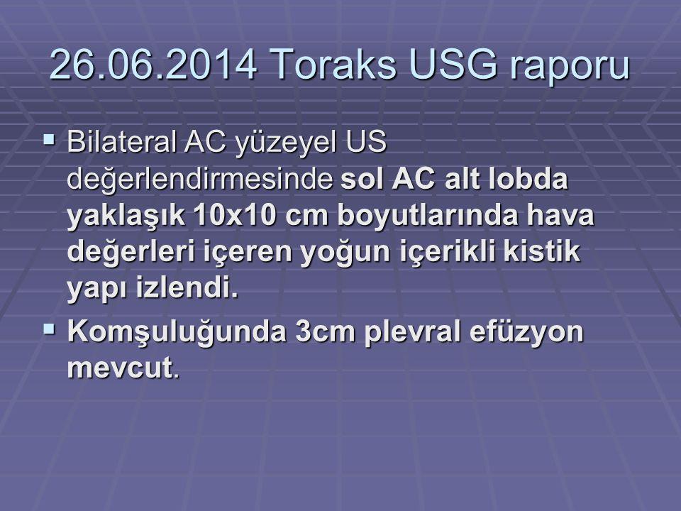 26.06.2014 Toraks USG raporu