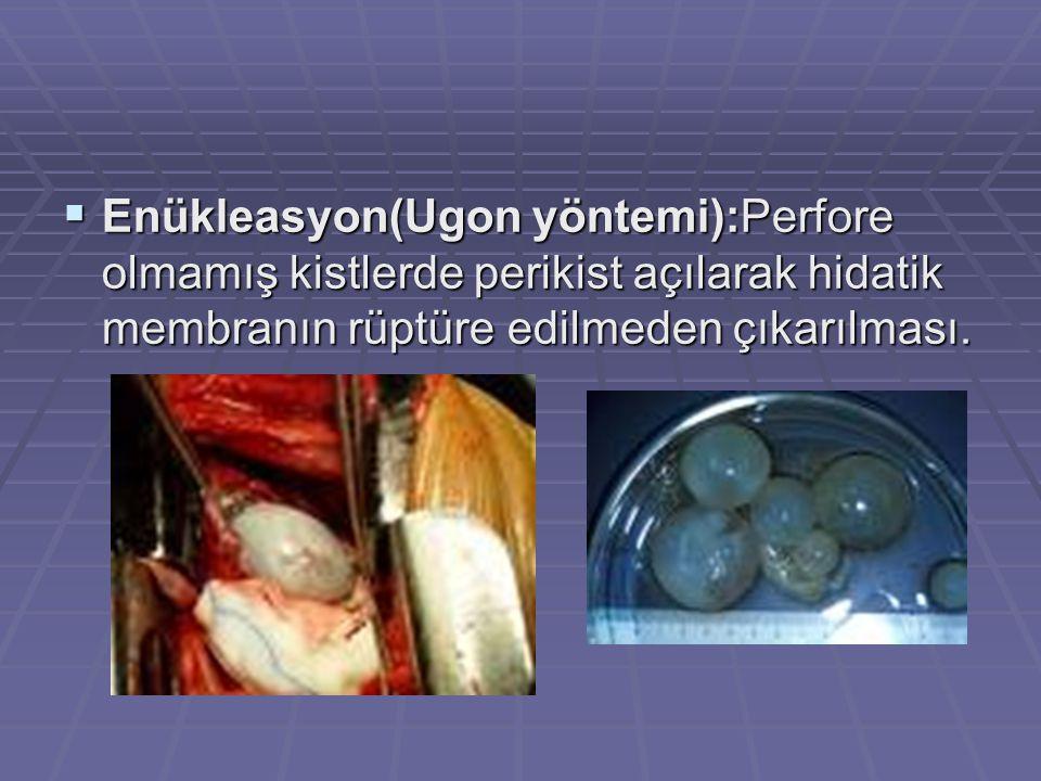 Enükleasyon(Ugon yöntemi):Perfore olmamış kistlerde perikist açılarak hidatik membranın rüptüre edilmeden çıkarılması.