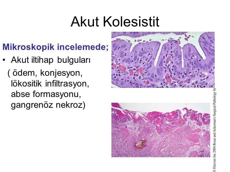 Akut Kolesistit Mikroskopik incelemede; Akut iltihap bulguları