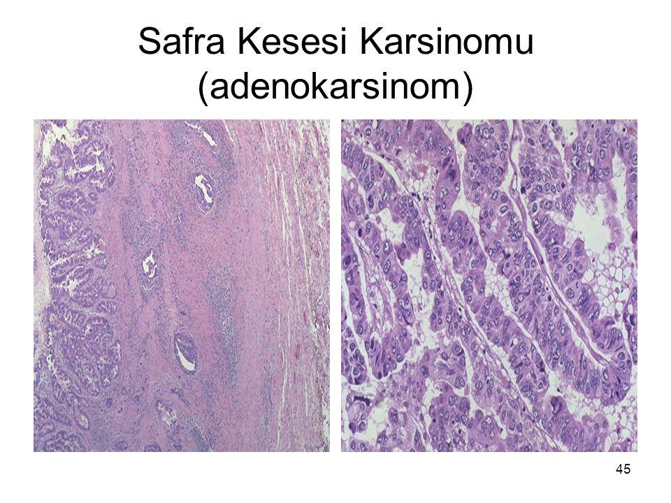 Safra Kesesi Karsinomu (adenokarsinom)