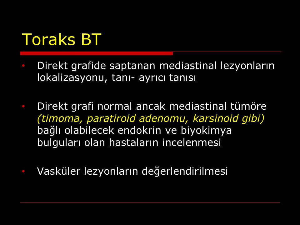 Toraks BT Direkt grafide saptanan mediastinal lezyonların lokalizasyonu, tanı- ayrıcı tanısı.