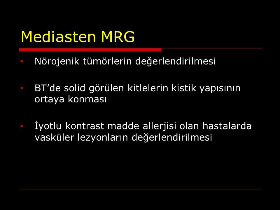 Mediasten MRG Nörojenik tümörlerin değerlendirilmesi
