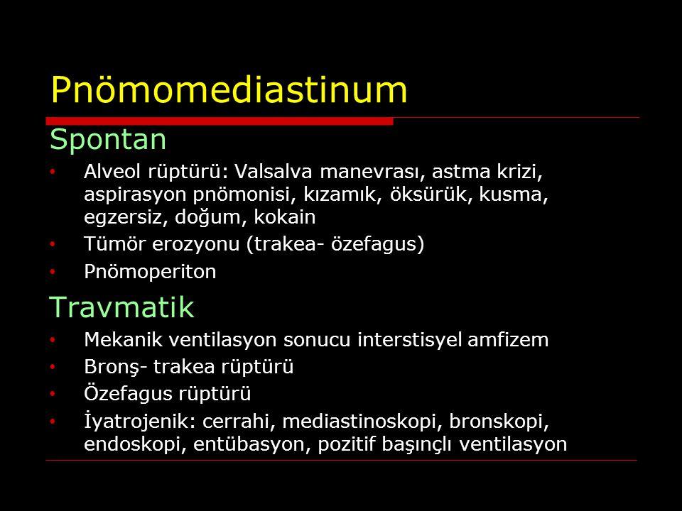 Pnömomediastinum Spontan Travmatik