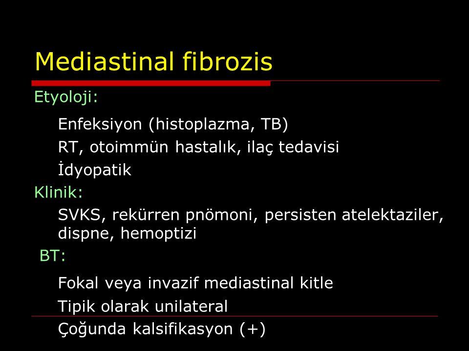 Mediastinal fibrozis Enfeksiyon (histoplazma, TB)
