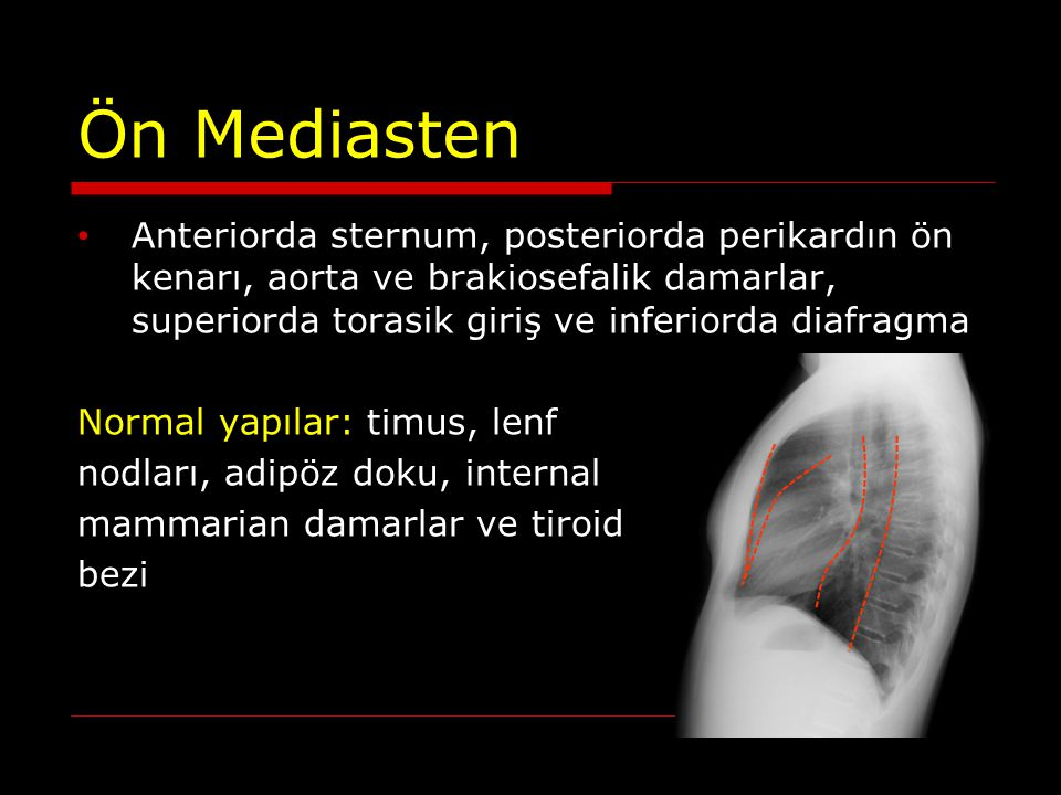 Ön Mediasten Anteriorda sternum, posteriorda perikardın ön kenarı, aorta ve brakiosefalik damarlar, superiorda torasik giriş ve inferiorda diafragma.