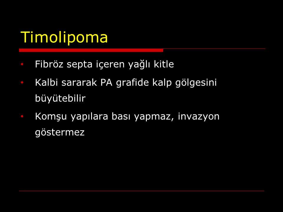 Timolipoma Fibröz septa içeren yağlı kitle