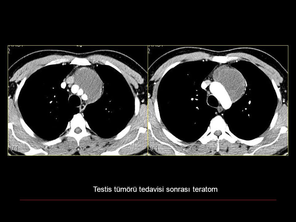 Testis tümörü tedavisi sonrası teratom