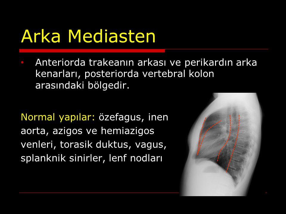 Arka Mediasten Anteriorda trakeanın arkası ve perikardın arka kenarları, posteriorda vertebral kolon arasındaki bölgedir.