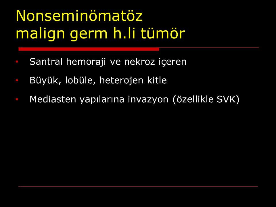 Nonseminömatöz malign germ h.li tümör